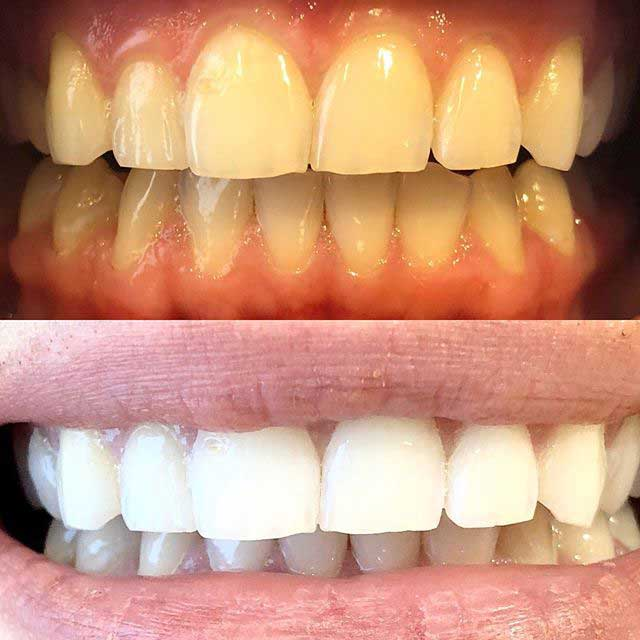 teeth whitening after 1 hour