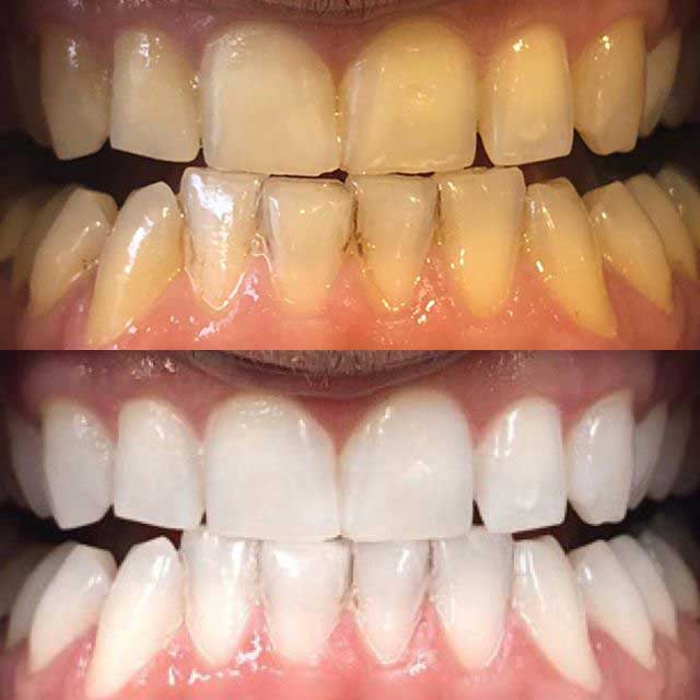 teeth whitening touch up after 6 months