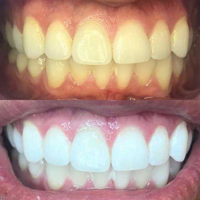 teeth whitening touch up after 1 year