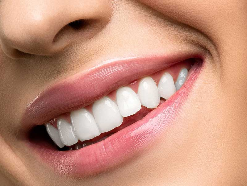 Teeth whitening in Washington, DC