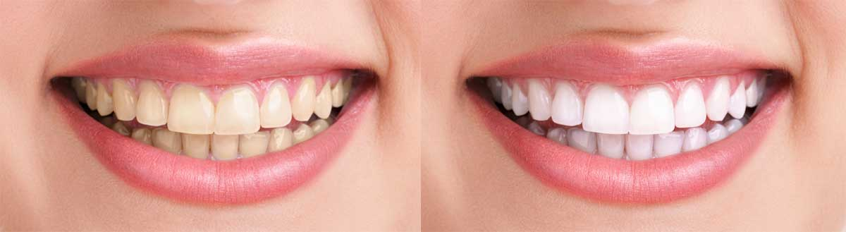 teeth wnitening before and after by BeautyBoss