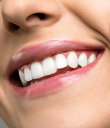Teeth whitening by BeautyBoss